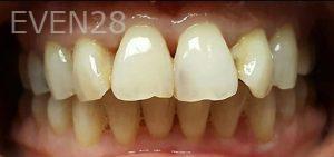 Steven-Son-Dental-Crowns-before-4