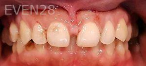 Steven-Son-Dental-Crowns-before-5