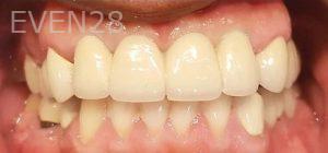 Steven-Son-Dental-Implants-after-1
