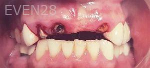Steven-Son-Dental-Implants-before-1