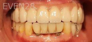 Steven-Son-Full-Mouth-Dental-Implants-after-1