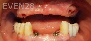 Steven-Son-Full-Mouth-Dental-Implants-before-1