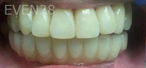 Steven-Son-Implant-Supported-Dentures-after-1