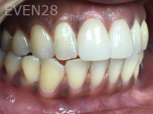 Tamlyn-Lee-Dental-Crowns-after-1
