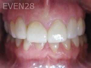 Tamlyn-Lee-Dental-Crowns-after-2