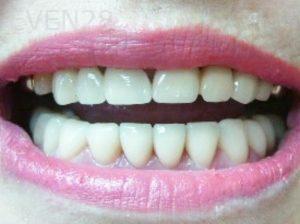 Tamlyn-Lee-Dental-Crowns-after-3
