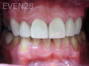 Tamlyn-Lee-Dental-Crowns-after-4