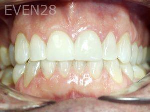 Tamlyn-Lee-Dental-Crowns-after-5