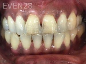 Tamlyn-Lee-Dental-Crowns-before-1