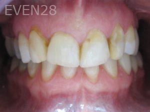 Tamlyn-Lee-Dental-Crowns-before-2