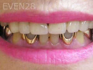 Tamlyn-Lee-Dental-Crowns-before-3