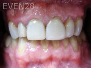Tamlyn-Lee-Dental-Crowns-before-4