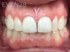 Tamlyn-Lee-Dental-Crowns-before-5