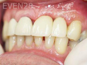 Tamlyn-Lee-Dental-Implants-after-1