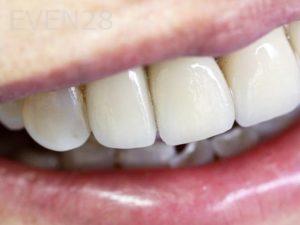 Tamlyn-Lee-Dental-Implants-after-2