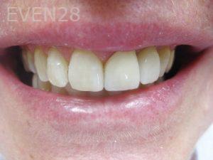 Tamlyn-Lee-Dental-Implants-after-3