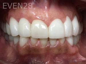 Tamlyn-Lee-Dental-Implants-after-4