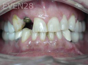 Tamlyn-Lee-Dental-Implants-before-4