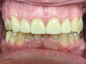 Tamlyn-Lee-Full-Mouth-Rehabilitation-after-2