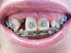 Tamlyn-Lee-Full-Mouth-Rehabilitation-before-1