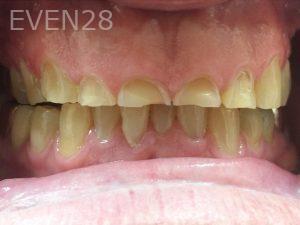 Tamlyn-Lee-Full-Mouth-Rehabilitation-before-2