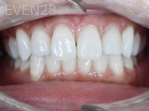 Tamlyn-Lee-Invisalign-Clear-Aligners-after-1