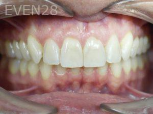 Tamlyn-Lee-Invisalign-Clear-Aligners-after-2