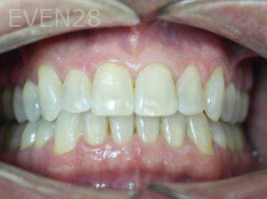 Tamlyn-Lee-Invisalign-Clear-Aligners-after-3