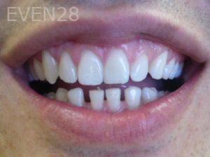 Tamlyn-Lee-Porcelain-Veneers-before-1