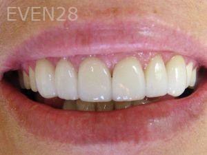 Tamlyn-Lee-Smile-Makeover-after-1