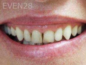 Tamlyn-Lee-Smile-Makeover-before-1