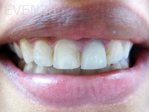 Tamlyn-Lee-Smile-Makeover-before-2