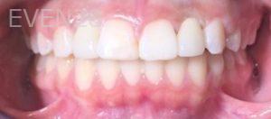 Tammy-Tran-Dental-Implants-after-1