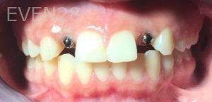 Tammy-Tran-Dental-Implants-before-1