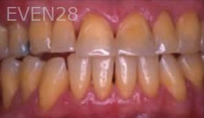 Ting-Wey-Yen-Dental-Crowns-before-1