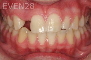 Ting-Wey-Yen-Dental-Implants-before-1