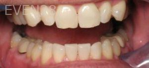 Ting-Wey-Yen-Teeth-Whitening-after-2