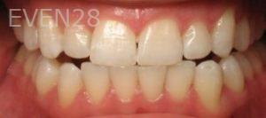 Ting-Wey-Yen-Teeth-Whitening-after-3