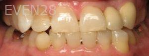 Ting-Wey-Yen-Teeth-Whitening-after-4