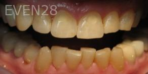 Ting-Wey-Yen-Teeth-Whitening-before-1