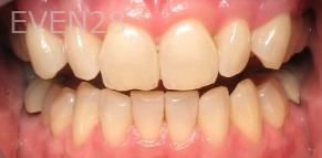 Ting-Wey-Yen-Teeth-Whitening-before-2