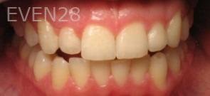Ting-Wey-Yen-Teeth-Whitening-before-3