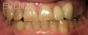 Ting-Wey-Yen-Teeth-Whitening-before-4