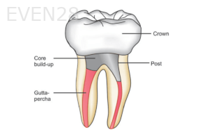 Root-Canal-Post-crown