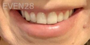Vivian-Yin-Invisalign-Clear-Aligners-after-1b