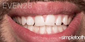 Vu-Le-Dental-Bonding-after-1