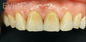 Vu-Le-Dental-Bonding-after-2