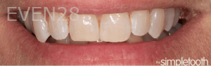 Vu-Le-Dental-Bonding-after-3