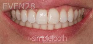 Vu-Le-Dental-Bonding-after-4