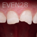 Vu-Le-Dental-Bonding-before-1